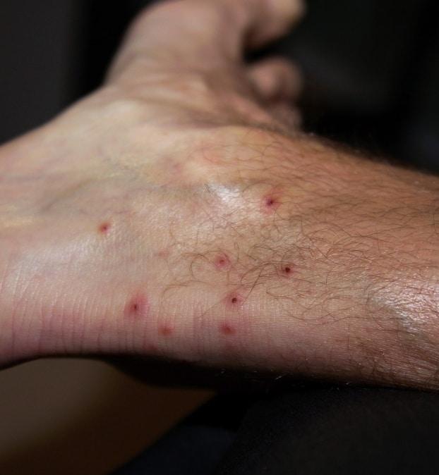 Flea bites on humans